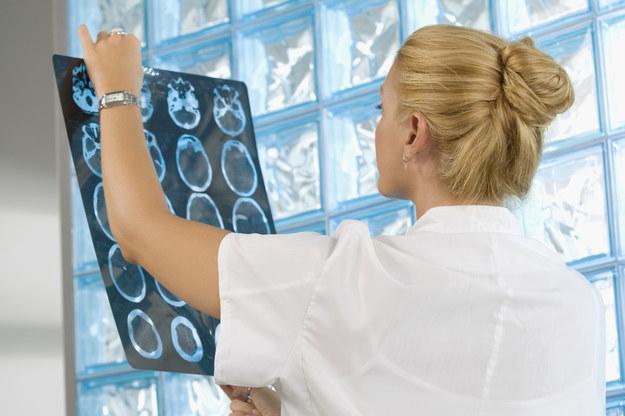 ERA-NET NEURON Cofund jest konkursem międzynarodowym, skupionym na finansowaniu badań z zakresu neurologii. /© Glowimages