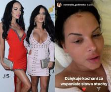 Esmeralda Godlewska wydała oświadczenie po wypadku!