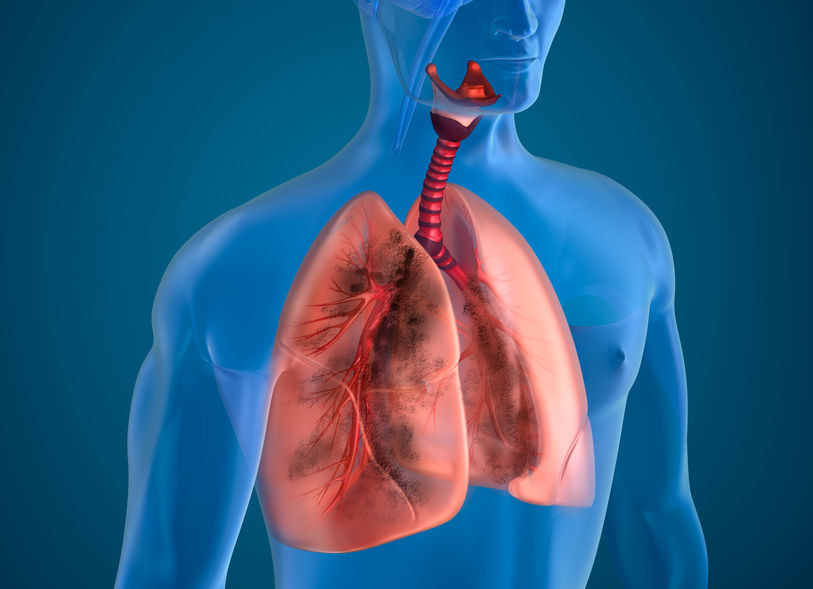 Formaldehyd wywołuje obrzęk płuc i zaburza ich pracę /123RF/PICSEL
