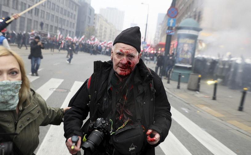 Fotoreporter postrzelony z bliskiej odległości /Jakub Kaminski/ /East News