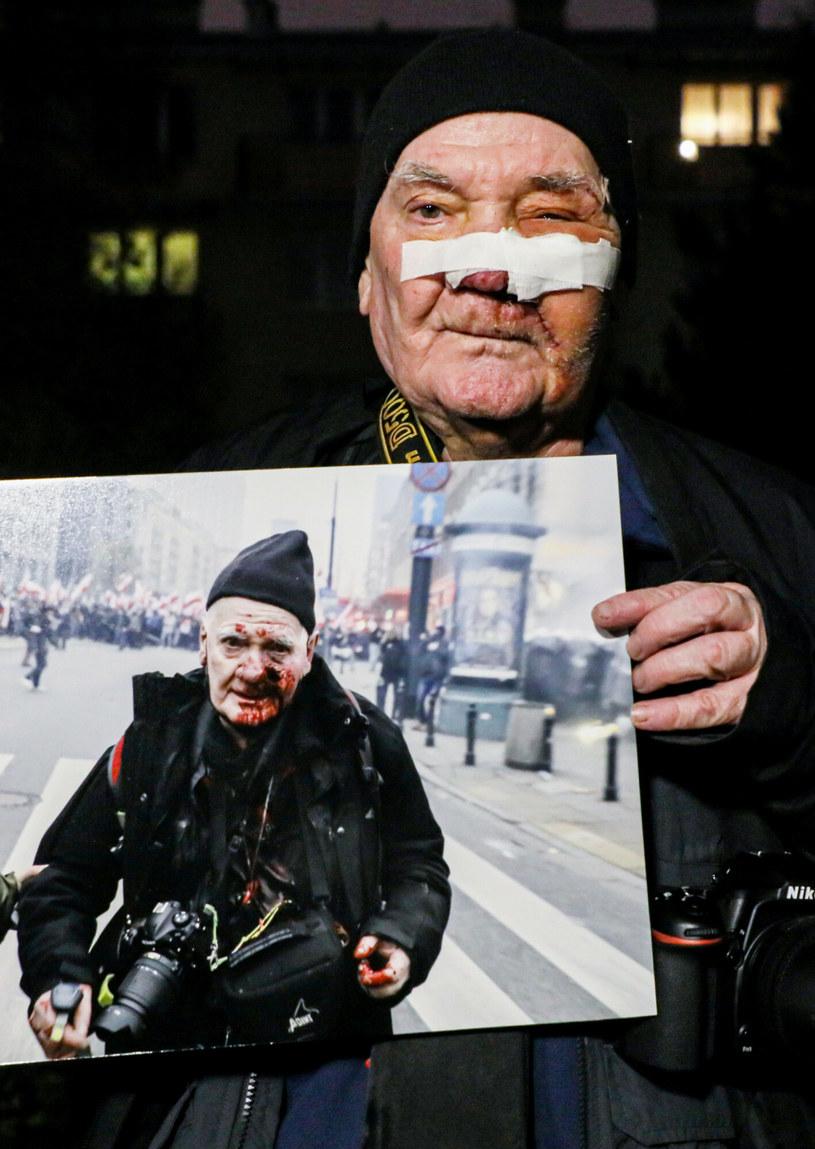Fotoreporter Tomasz Gutry - postrzelony przez policję podczas Marszu Niepodległości - wyszedł już ze szpitala /Jakub Kaminski/East News /East News
