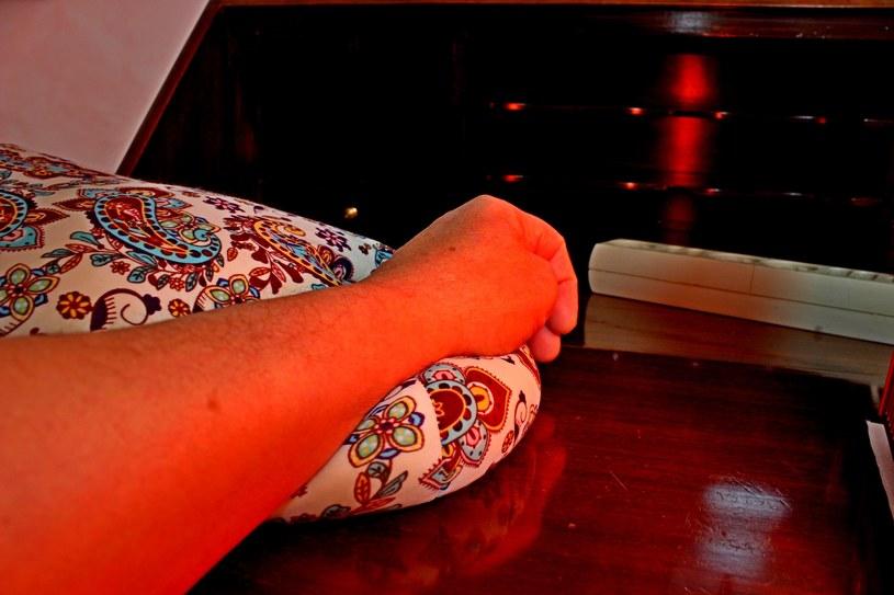 Fototerapia daje lekarzom różnych specjalności dodatkowe narzędzie pracy /123RF/PICSEL