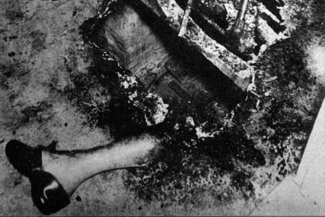 Fragment nogi dr. Bentleya – jedyna część ciała, której nie pochłonął ogień. /materiały prasowe