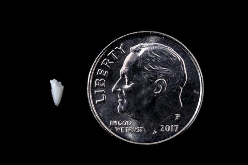 Fragment zęba przez 24 lata tkwił w stopie Amerykanina /East News