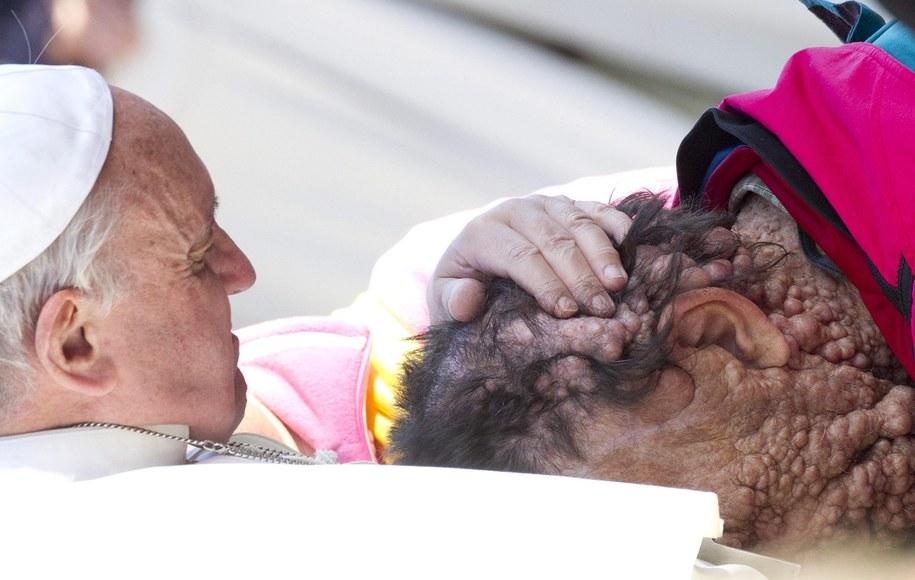 Franciszek we współczującym geście wobec chorej osoby /CLAUDIO PERI /PAP/EPA
