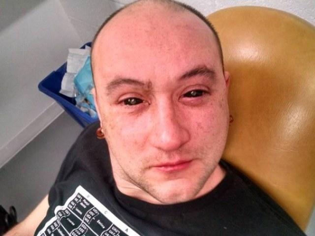 Gabriel Licina przyznał, że wstrzyknięta substancja chemiczna powodowała ból oczu. Fot. Science of the Masses. /Tylkonauka.pl