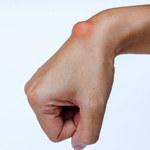 Ganglion: Objawy, przyczyny, jak leczyć?