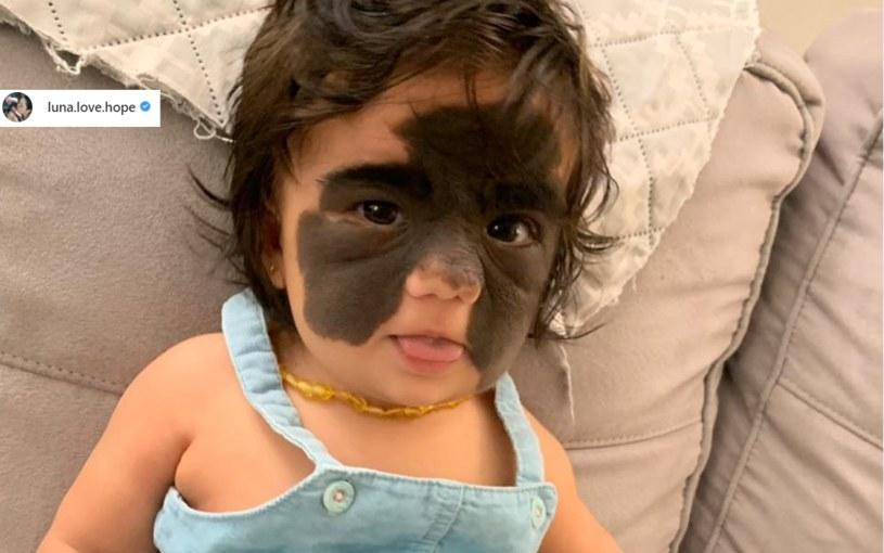 Gdy maleńka Luna przyszła na świat jej rodzice byli bardzo zaniepokojeni. Obawiali się, że zmiana, która pokrywała twarz dziecka, jest złośliwa /Instagram / @luna.love.hope /Instagram
