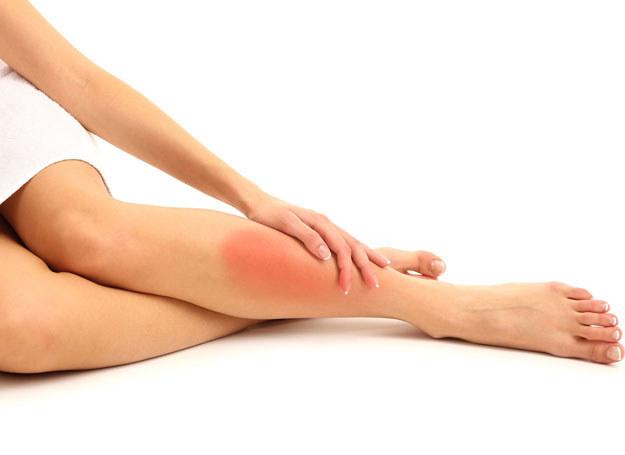 Gdy masz duże żylaki, które nie tylko szpecą nogi, ale przysparzają dolegliwości i grożą zakrzepami /123RF/PICSEL