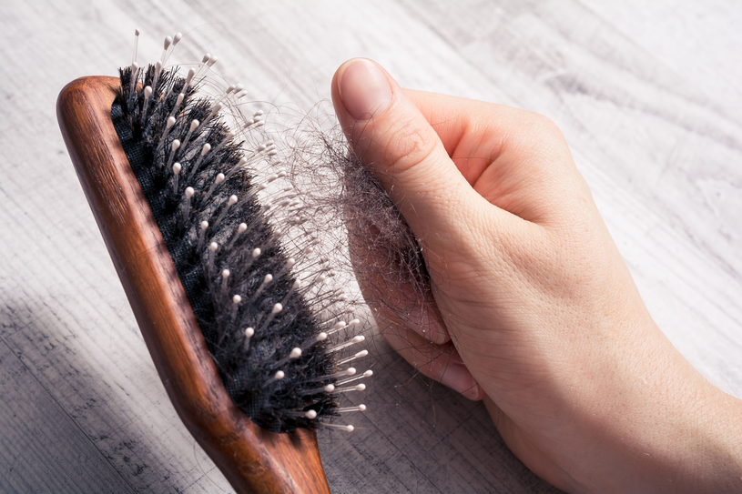 Gdy zauważysz pierwsze oznaki wypadania włosów, od razu zacznij działać /123RF/PICSEL