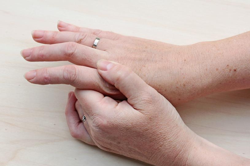 Gdy zauważysz plamki na dłoniach, skonsultuj się z lekarzem /123RF/PICSEL