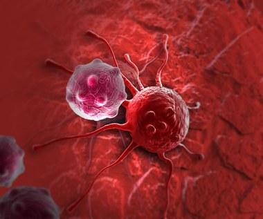 Glejak wielopostaciowy – groźny nowotwór mózgu