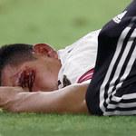 Gold Cup. Hirving Lozano trafił do szpitala po fatalnym zderzeniu z bramkarzem