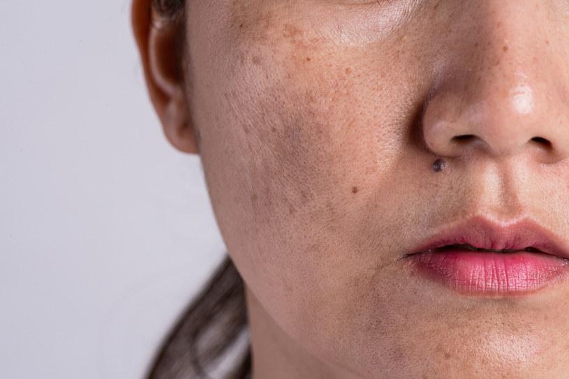 Google zapowiedział wprowadzenie narzędzia, które przy pomocy sztucznej inteligencji zidentyfikuje choroby skóry /Siam Pukkato   /123RF/PICSEL