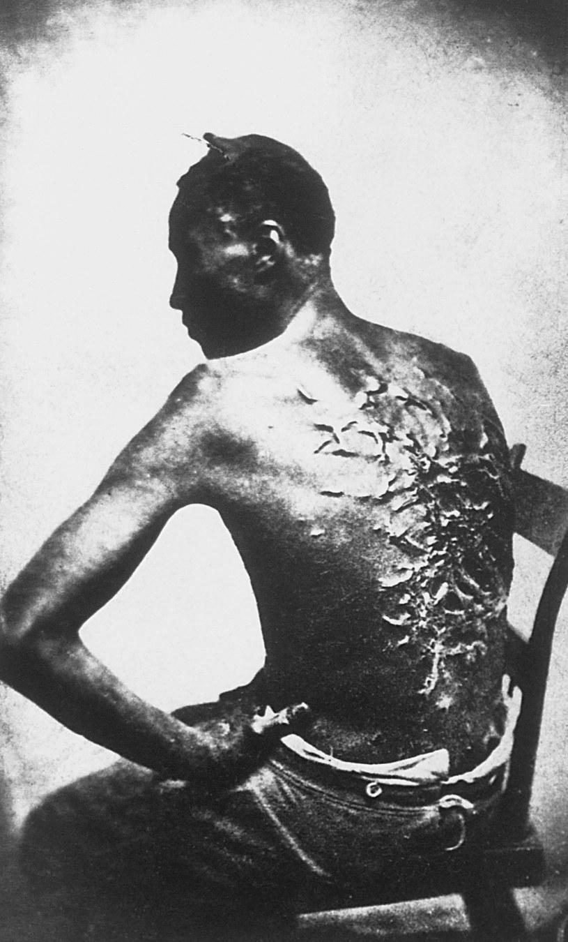 Gordon, niewonik z Luizjany. Jego zdjęcie ukazało się w prasie w 1863 roku, jako jeden z dowodów na nieludzkie traktowanie niewolników /Getty Images