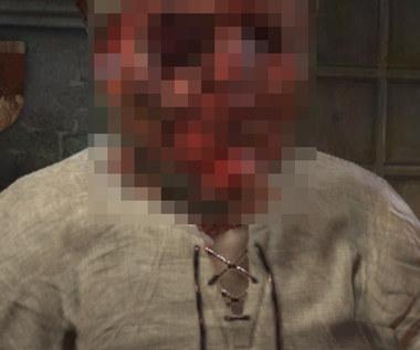 Gracz zaraził postać w Crusader Kings 3 wszystkimi dostępnymi w grze chorobami. Efekt końcowy szokuje