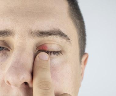 Gradówka - guzek na oku
