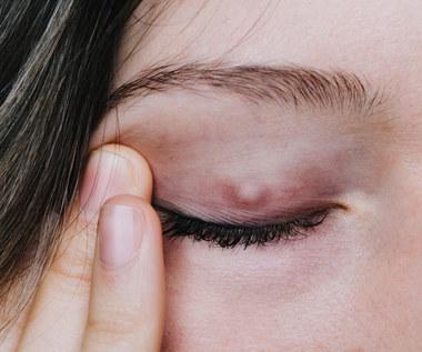 Gradówka na oku: Objawy, przyczyny, jak leczyć?