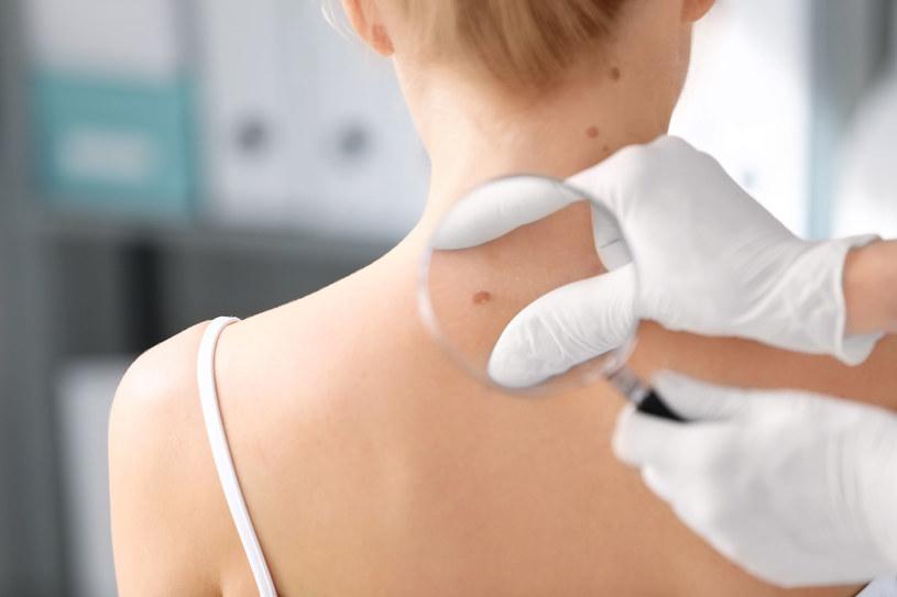 Grudki, guzki, pęcherzyki, krostki lub owrzodzenia, mogą towarzyszyć chorobom jelit oraz niektórym nowotworom /123RF/PICSEL