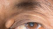 Grudki na powiekach