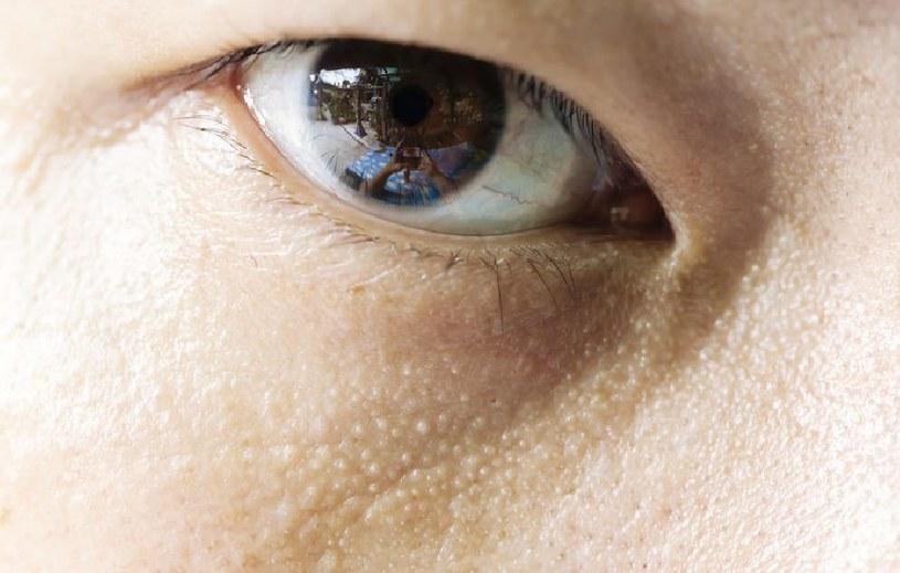 Grudki na twarzy? Nigdy nie wyciskaj /©123RF/PICSEL