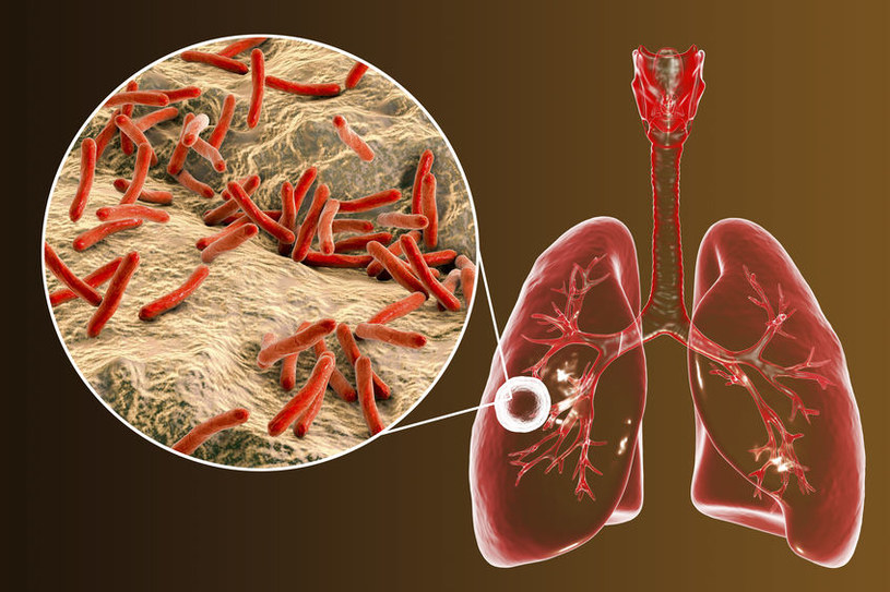 Gruźlica to podstępna choroba /©123RF/PICSEL