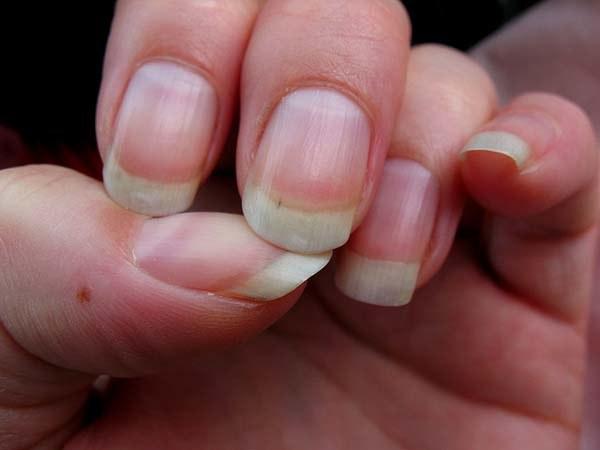 grzybica paznokci woda utleniona /© Photogenica