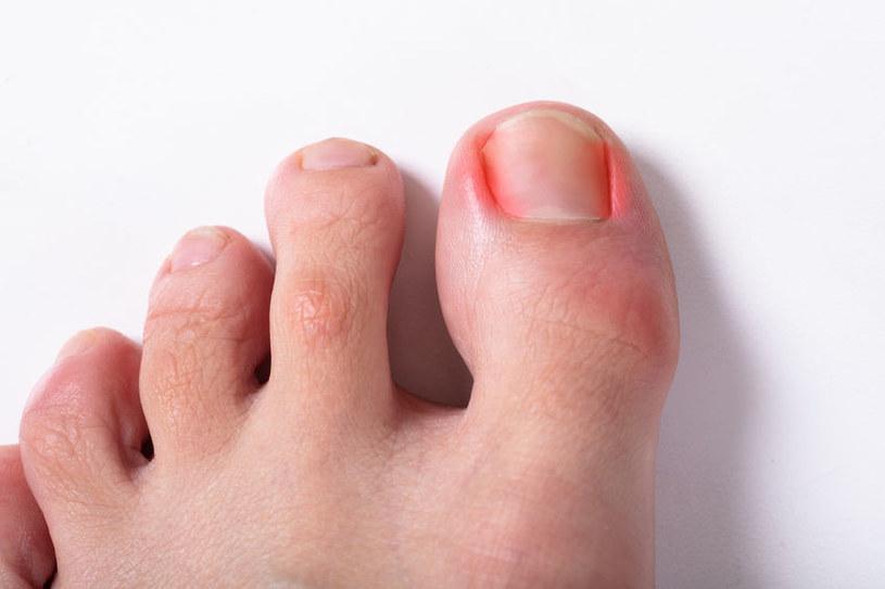 Grzybica paznokci /©123RF/PICSEL
