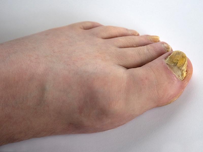 grzybica paznokci /© Photogenica