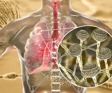 Grzybica płuc: Przyczyny, objawy i leczenie