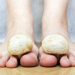Grzybice skóry - jakie są ich przyczyny i jak sobie z nimi radzić?