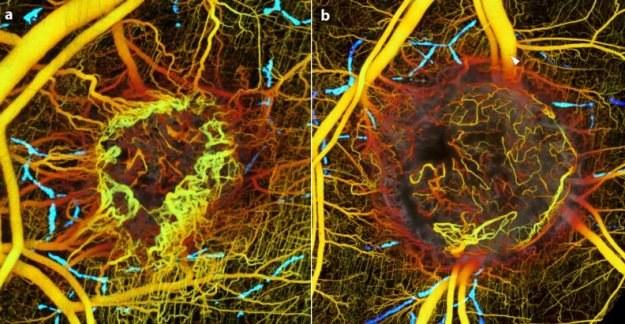 Guz przed (a) i 5 dni po (b) podaniu leków hamujących angiogenezę /materiały prasowe
