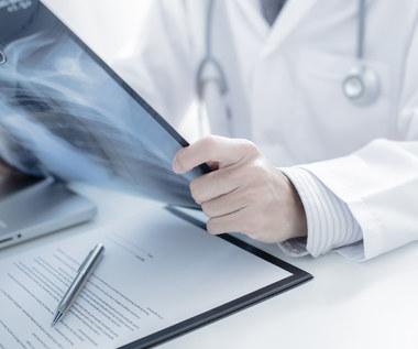 Guzki Schmorla – oznaka poważnej choroby