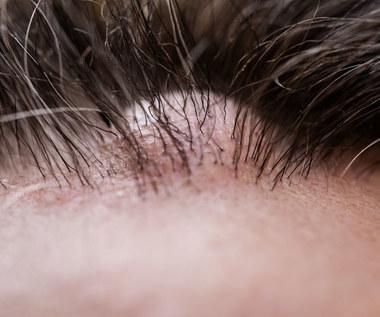Guzki skórne: Objawy, przyczyny, leczenie