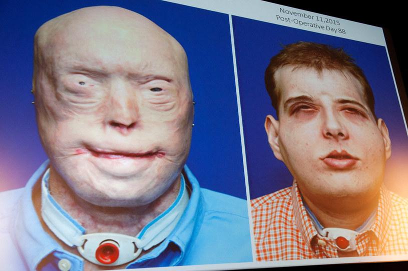 Hardison przed i po przeszczepie twarzy /Drew Angerer / GETTY IMAGES NORTH AMERICA / Getty Images via AFP /AFP