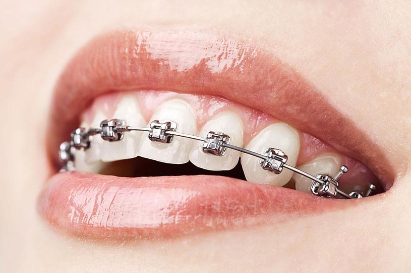 Higiena jamy ustnej u osób noszących aparaty stałe jest sprawą niezwykle ważną i trzeba poświęcić na nią znacznie więcej czasu /123RF/PICSEL
