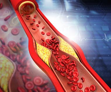 Hipercholesterolemia rodzinna: Przyczyny, objawy i leczenie