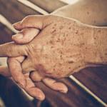 Hiperpigmentacja: Przyczyny, objawy i leczenie