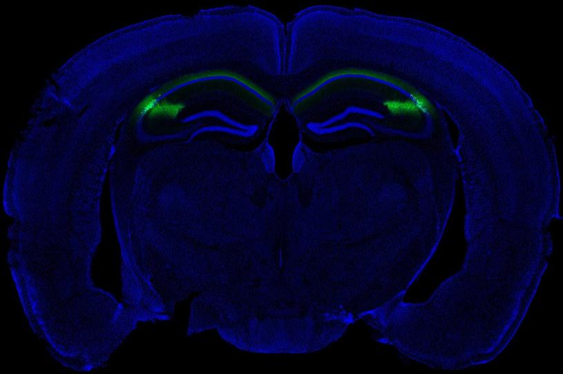 Hipokamp bierze rolę w tworzeniu wspomnień /materiały prasowe