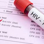 HIV - wirus groźniejszy niż SARS-CoV-2
