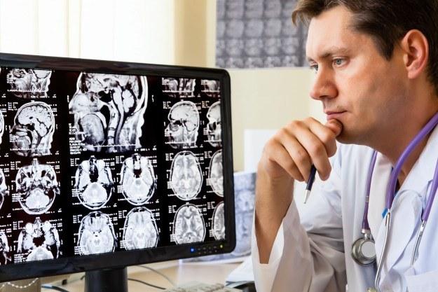 """""""Human Brain Project"""" pozwoli na lepsze zrozumienie działania mózgu /123RF/PICSEL"""