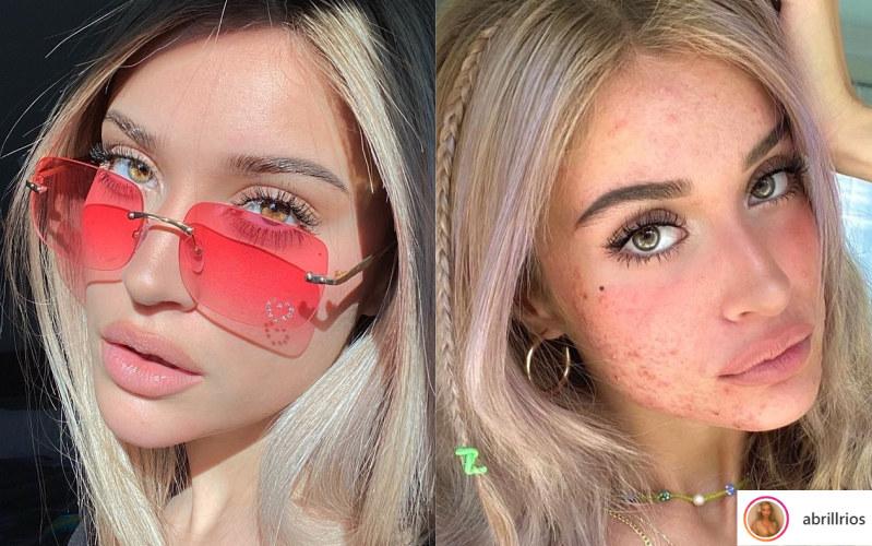 Idole młodzieży rzadko pokazują swoje niedoskonałości /instagram.com/abrillrios /Instagram