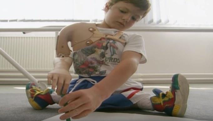 Igor w późniejszym czasie zrezygnował z protez i nauczył się żyć bez nich /YouTube