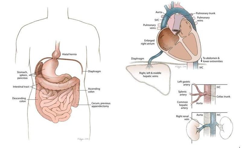 Ilustracja po lewej obrazuje situs inversus z lewokaridą u Rosie Marie Bentley, pozostałe schematy prezentują inne wady anatomiczne u zmarłej kobiety /Fot. Uniwersytet Oregonu /materiały prasowe