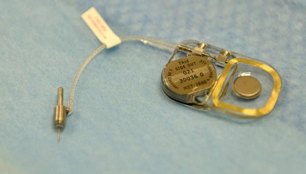 Implant MET /Marcin Obara /PAP