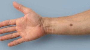 Implant skóry, który wykryje raka w organizmie