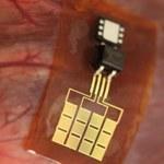 Implanty zasilane energią z organów wewnętrznych