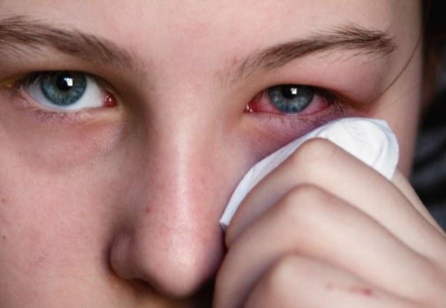Infekcje oka /© Photogenica