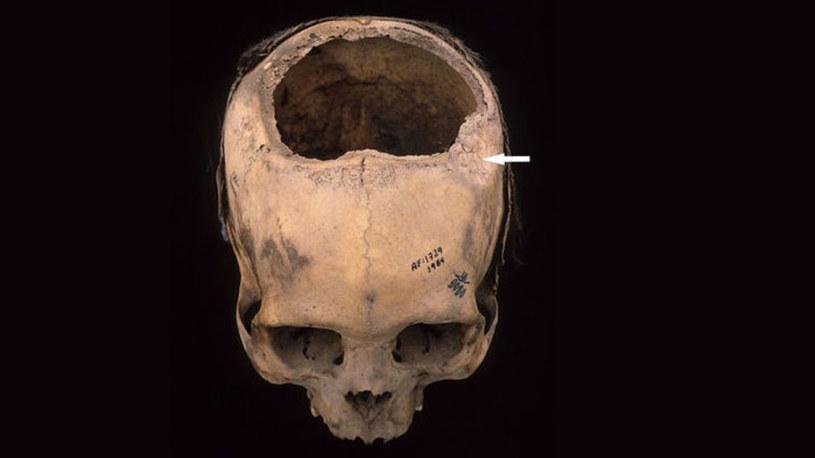 Inkowie byli lepsi w trepanacji czaszki niż lekarze podczas wojny secesyjnej /Innemedium.pl