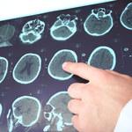 Innowacyjna metoda leczenia epilepsji